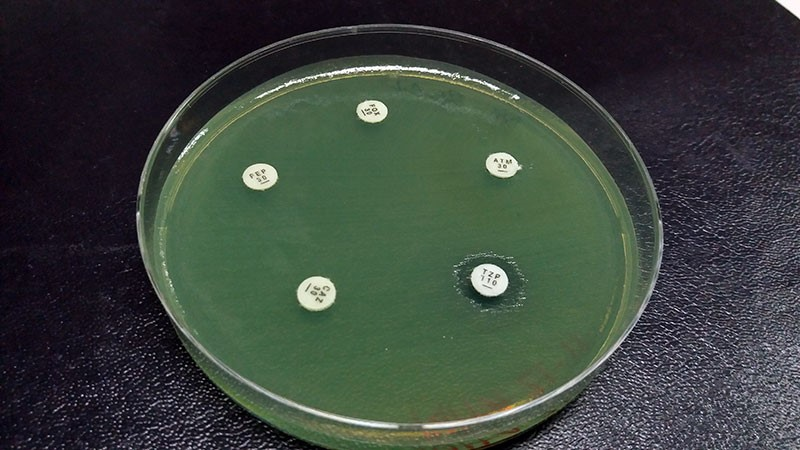 Drug resistant bacteria - picture of them in some kind of green liquid